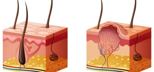 Siğillerin Tedavisinde Salisilik Asit Kullanımı